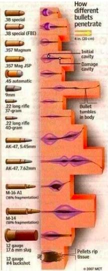 Buckshot Wounds On Humans : Wound Ballistics Motion And ...